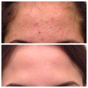 ninofavoriti-trattamento-acne-02