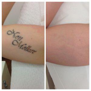 ninofavoriti_rimozione_tatuaggi